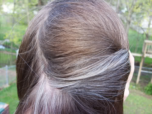 Best Vitiligo Hair Colour The Vit Pro A Vitiligo Blog